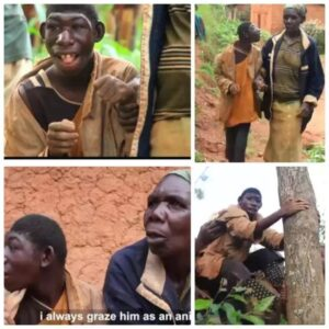 PHOTOS: The 21 Years Old Special Abilities Boy With features Of A Monkey and eats grass