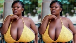 Watch Video-I nearly stop attending church because of my Big Melons- Paticia, Lady With Heavy Chest tells her story