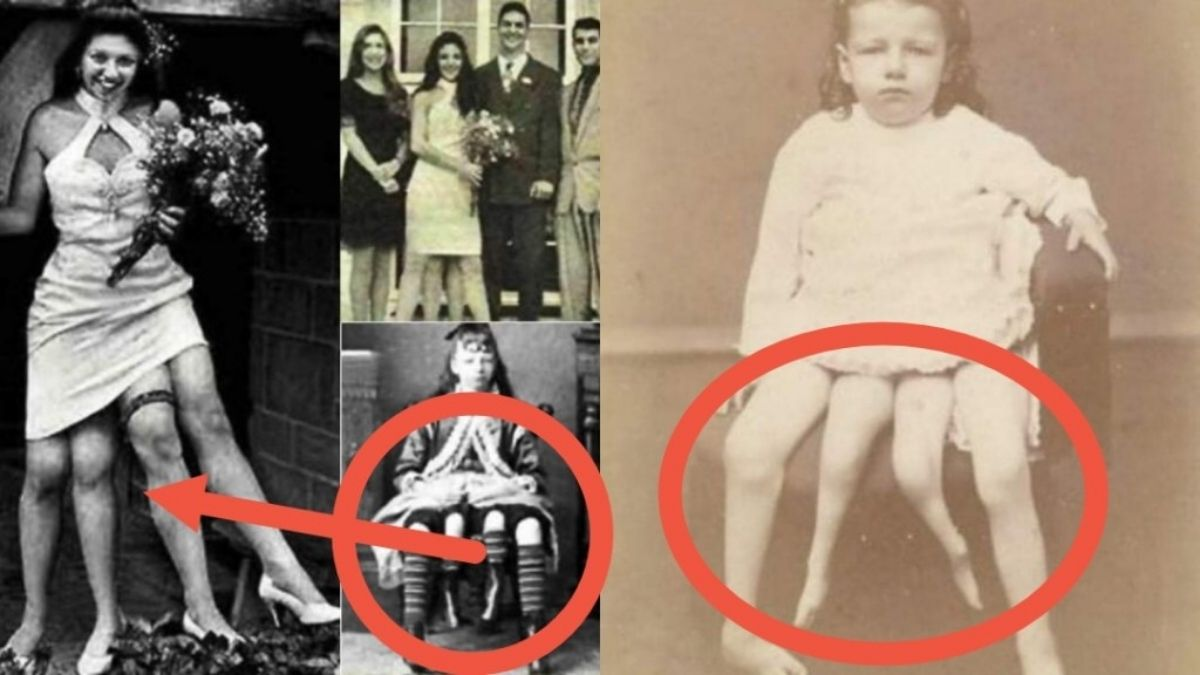 Read more about the article Josephine Myrtle Corbin: Cause Of Birth & Death, Siblings, Anatomy & Facts About the Two Private Parts, Four Legs Woman